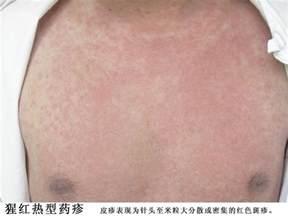 麻疹:荨 麻疹 型 药疹 避免 诱因 荨 麻疹 的 发病 与 饮食 ...