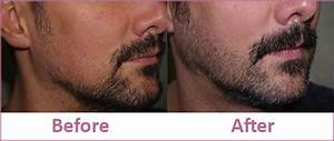 Beard/Mustache Hair Transplant Centre in Punjab, India
