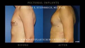 Pectoral Implants Before  U0026 After Photos Los Angeles