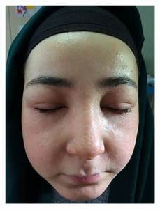 Bilateral Periorbital Edema  Facial Widespread Erythema