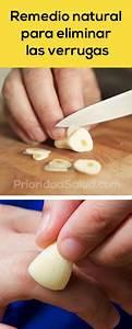 remedios caseros para eliminar las verrugas de forma With 10 maneras naturales para curar las verrugas