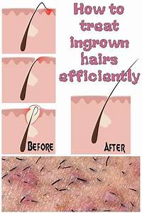 How To Properly Remove Ingrown Hair   In 2020