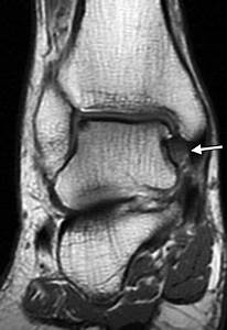 Mr Imaging Of Deltoid Ligament Pathologic Findings And