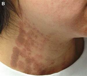 A  Follicular And Slightly Generalized Urticaria After