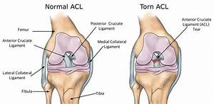 Diagram Of Torn Acl : news returning from an acl injury amanda doran dpt ~ A.2002-acura-tl-radio.info Haus und Dekorationen