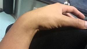 Wrist Vein Pulsing