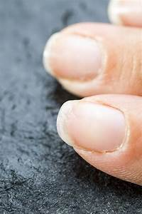 A Step By Step Guide On How To Get Rid Of Brittle Nails