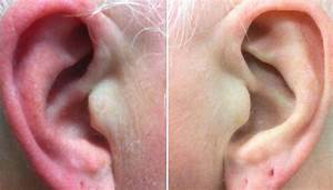 Red Ears  Symptoms  Causes  And Treatment
