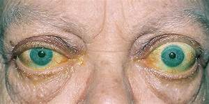 Teprotumumab Shows Robust Phase 3 Efficacy For Thyroid Eye