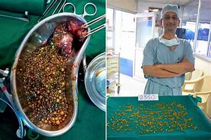Woman U2019s Abdominal Pain Turned Out To Be 2 350 Gallstones