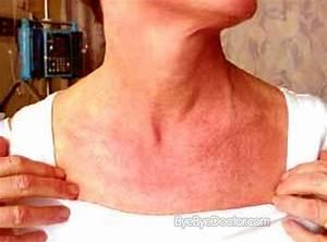 Dermatomyositis - Pictures, Symptoms, Causes, Diagnosis, Treatment Dermatomyositis