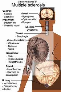 Ms Symptoms  Causes And Treatments