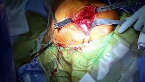 Total Hip Replacement Using Stryker Exeter -trident