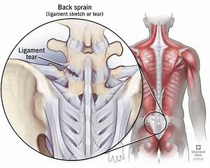 31 Diagram Of Back Muscles