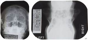 Marilyn Monroe X Rays Plastic Surgery Notes To Be