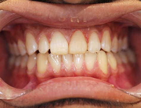 Ms dental offers family friendly regular and emergency dental services in a very modern and relaxed environment. Gallery   MsDental