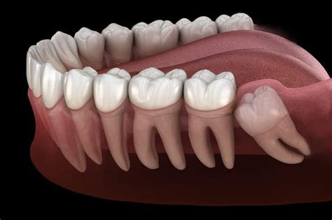 Start quote without dental insurance, wisdom teeth extractions can cost between $200 and $1,000 per tooth.² if you need all four wisdom teeth pulled, the bill can quickly add up. Best Dental Blog   Dr. Jasmine Naderi   Best Dental ...