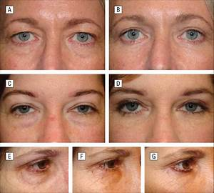 Transconjunctival Lower Blepharoplasty With Fat