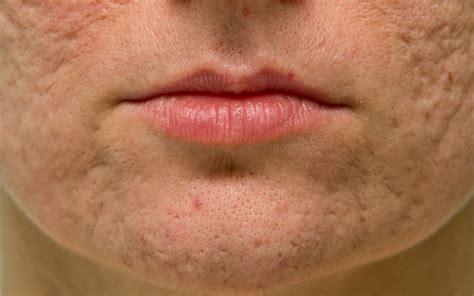 Qual o melhor tratamento para cicatrizes de acne? - Viesi