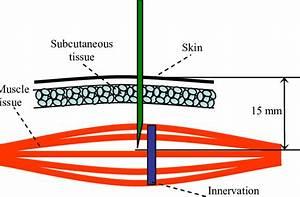 Penetration Depth Of Needle Electrode