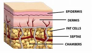 The Shelf Life Of Liposuction