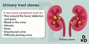 Complete Guide To The Causes Of Blood In Urine In Males