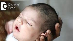 How To Ensure Right Shape Of Head In Newborns