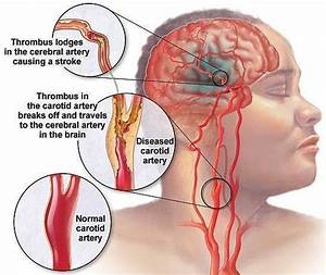 Symptoms Of Blocked Carotid Artery