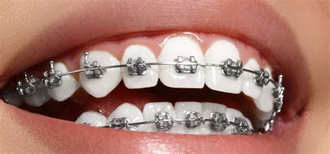 Find out here and see the best dental insurance. Teeth Alignment Expert   Call Orthodontists at Airlie Smile Care!   Dental braces, Metal braces ...