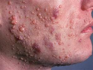 Facial Papules In An Adult