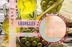 How To Get Rid Of Shingles Pain At Home