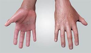 Pin By Yasmine Hamdi On Sweaty Hands Or Hyperhidrosis