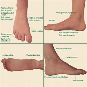 Foot Ankle Disorders Jeffrey S Feinblatt Md Pc
