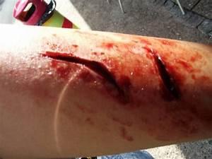 Sliced Arm Self Related Keywords - Sliced Arm Self Long ...