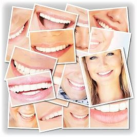Remove all gauze to drink, then replace gauze packs as needed. Teeth Whitening - Implant Dentistry, Cosmetic Dentistry   West Hollywood California