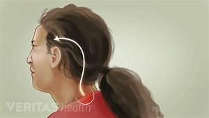 Pin On Headaches