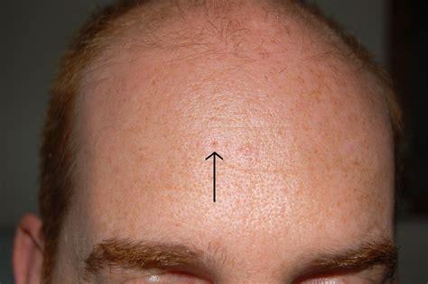 Extracting Keratin Plugshardened Sebum Rosacea Facial
