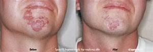 Birthmarks Dermatologist, Fairfax, Virginia, Rockville, Maryland, Washington, DC, Dr. Hema ...  Skin Cancer Birthmarks - pigmented