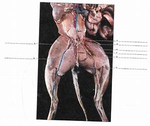 33 Label The Muscles In The Following Illustration