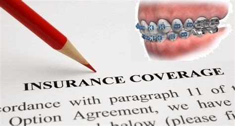 This means that, without the right braces insurance, you could be hit hard if you or your kids ever need orthodontics. Insurance Cover Braces- What You Need To Know   Dental insurance plans, Dental insurance, Cheap ...